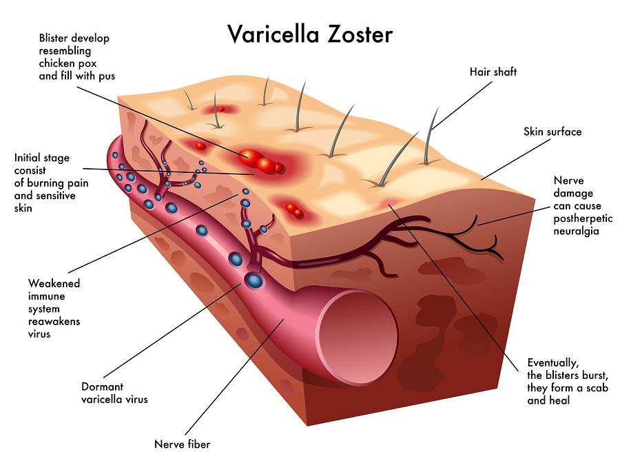 Varicella pneumonia adults