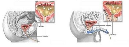 Cateterismo Vescicale Infermiere Sergio Portella